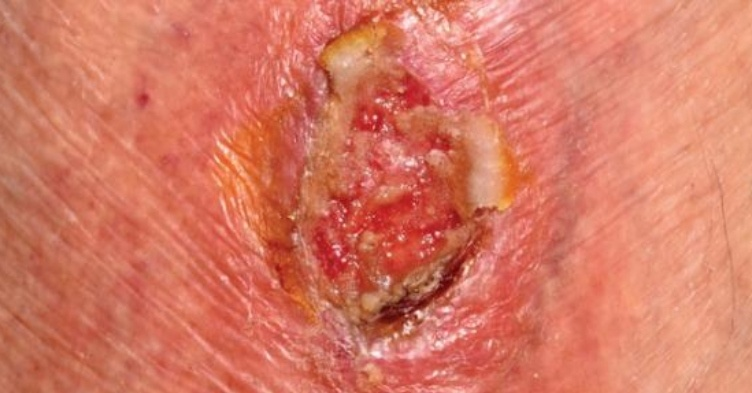 Ten top tips on leg ulcers