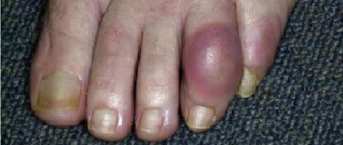 Gout patients better at sticking to treatment with nurse-led care
