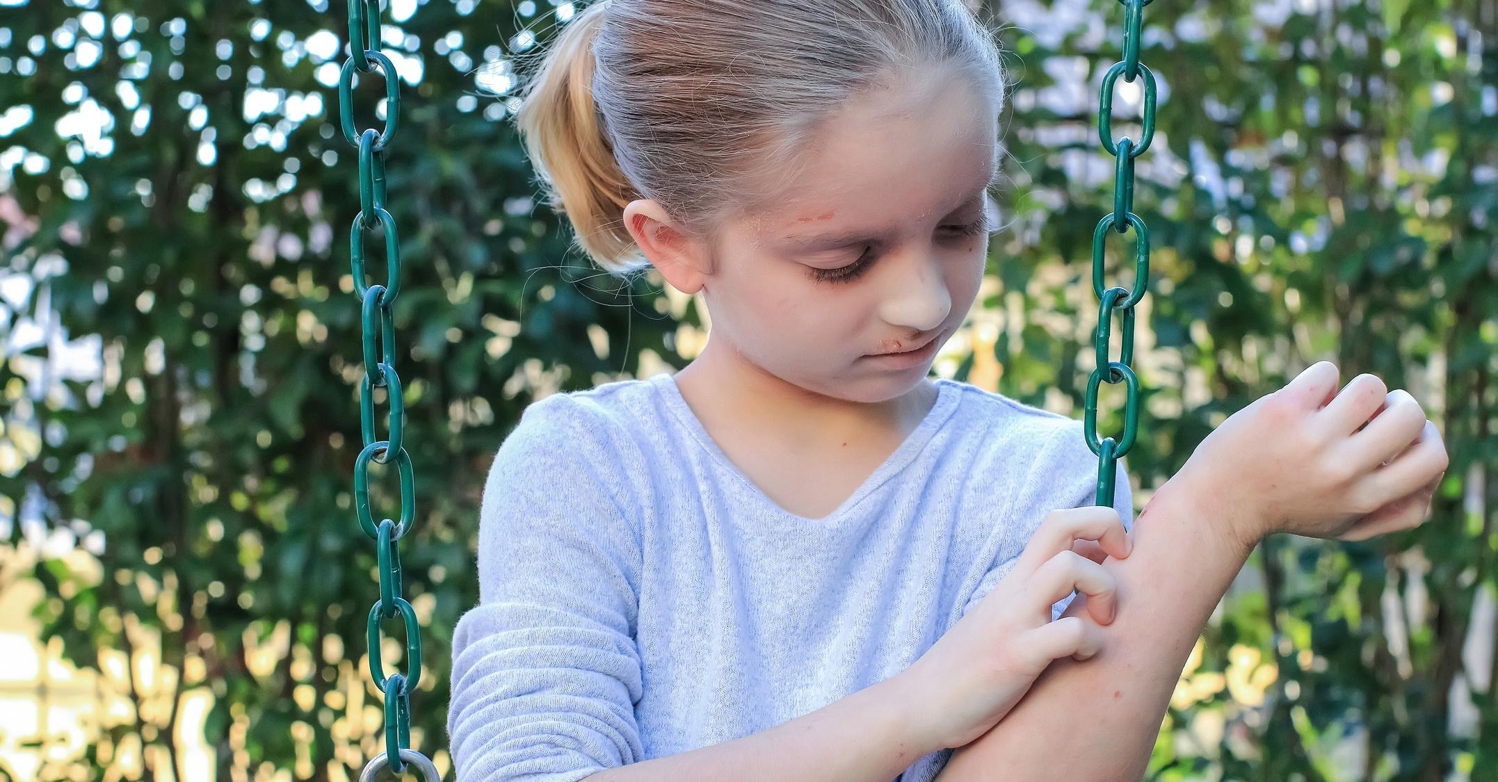 'Minimally invasive' tape strips tell eczema from psoriasis