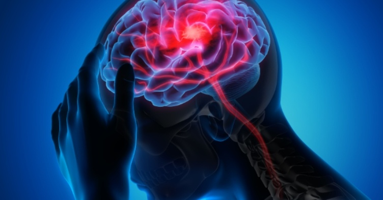 Mythbuster: 'I don't need to go to hospital for a mini stroke'