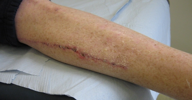 In review: How to do a comprehensive wound assessment