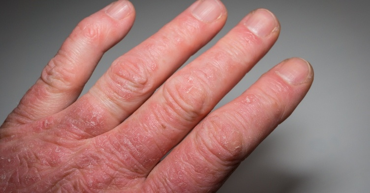 Psoriatic arthritis likely to have common trigger