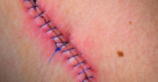 post-op wound care