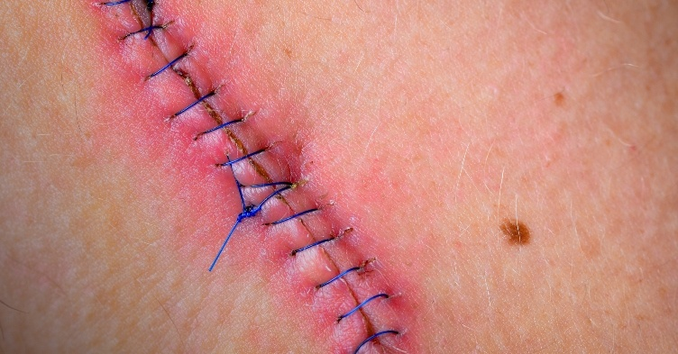 Learning module: managing surgical wounds after an operation