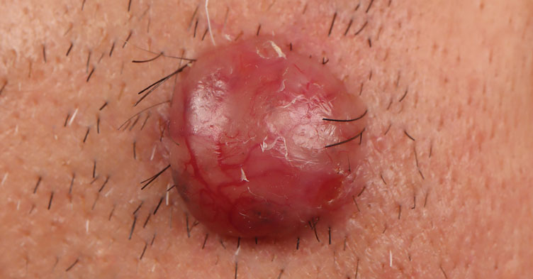 Picture quiz – skin lesions and how to refer them