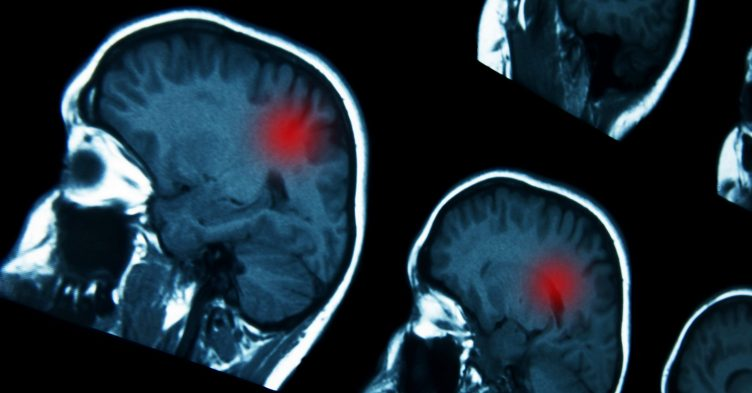Experimental brain cancer drug could be 'game-changing', say scientists