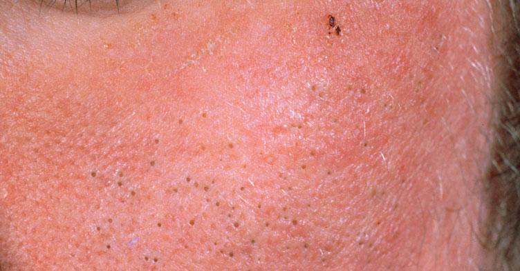 Picture quiz – types of acne