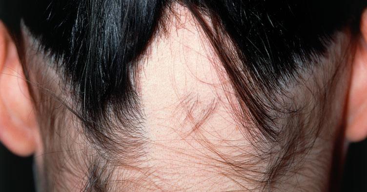 Picture quiz – causes of alopecia