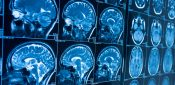 Artificial intelligence could detect dementia before symptoms appear