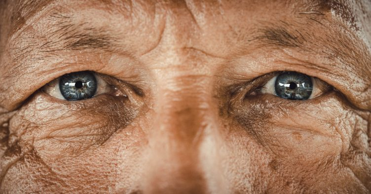 Eye conditions linked with increased risk of dementia, study finds