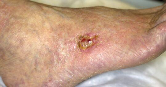 lower leg wound