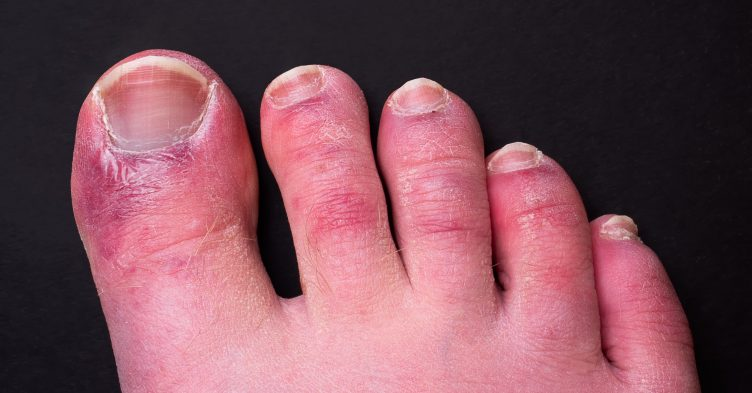 'Covid toe' may be side-effect of body fighting virus, study finds